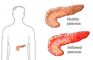 pancreatitis-information