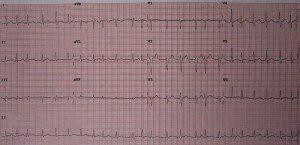 atrial-fibrillation- af-a-fib