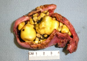 What does a gallstone look like when passed