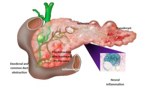 The Pain And Suffering Of Pancreatitis Beating Pancreatitis
