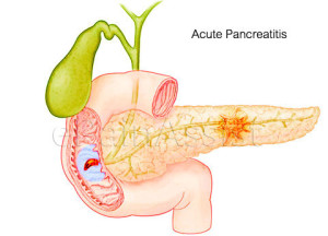 The Role of H.Pylori In Pancreatic Disease