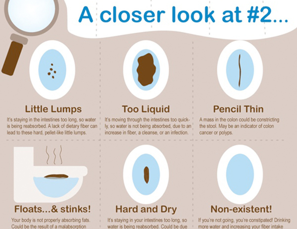 check-your-poop