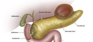 The Role of H.Pylori In Pancreatitis
